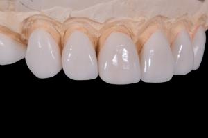 dental-2036945_640